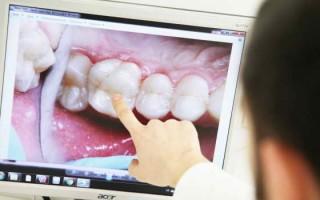 Реставрация зубов винирами, недостатки и достоинства методик