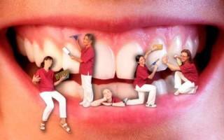 Полезно знать, чем может быть опасен зубной камень