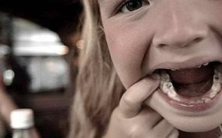 Кариес на молочных зубах: нужно ли пломбировать и чем опасно бездействие