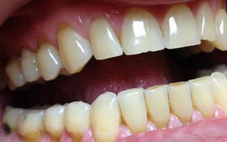 Стоит ли опасаться установки пломбы на передних зубах