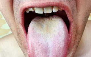 Причины появления и методы лечения кандидозного стоматита