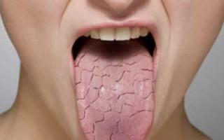 Опасность складчатого глоссита: как заподозрить болезнь по первым симптомам