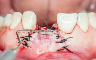 Почему возникает альвеолит после удаления зуба и как лечить данную патологию