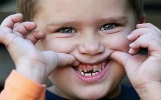 Что такое периодонтит, почему он может возникать у детей, как его лечить