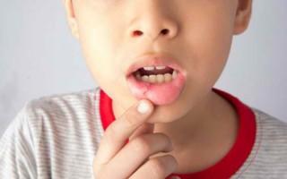 Профилактика стоматита у детей, причины и виды заболевания, эффективное лечение