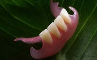 Применение нейлоновых зубных протезов — новый этап в стоматологии