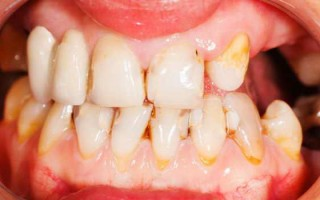Клиновидный дефект: причины и лечение зубов