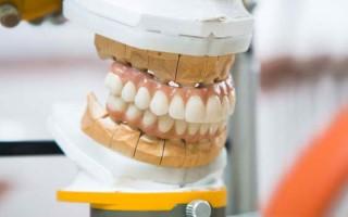 Всё, что нужно знать о ремонте зубных протезов