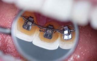 Сколько носят брекеты, и что влияет на длительность ортодонтического лечения