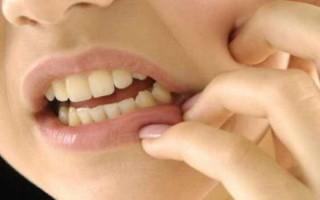 Пульпит под пломбой, роль стоматолога, правильное и безопасное лечение