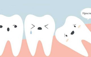 Почему болит зуб мудрости и как с этим бороться