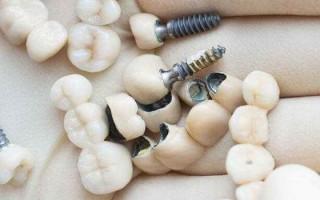 Протезирование зубов. Имплант или коронка: что лучше выбрать