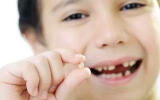 Как вырвать молочный зуб: инструкции, советы врачей