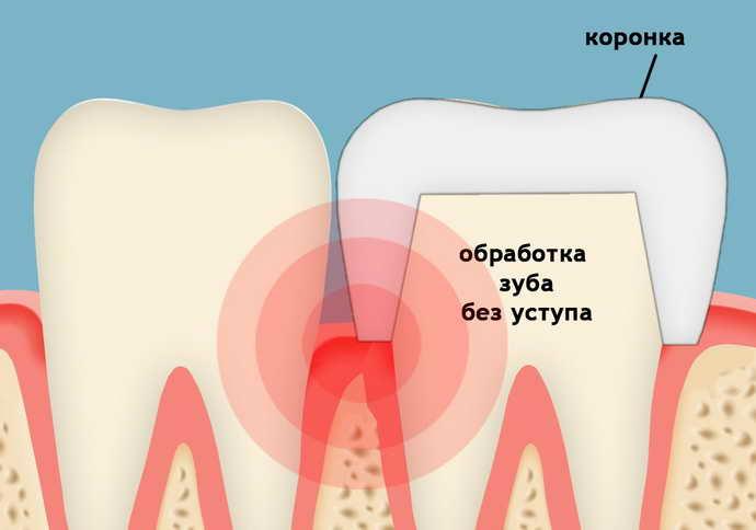 Что делать, если под коронкой болит зуб