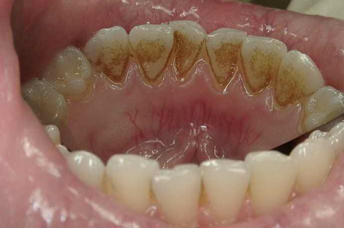 Что такое камень на зубах