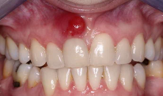 Что такое зубной свищ и как он выглядит