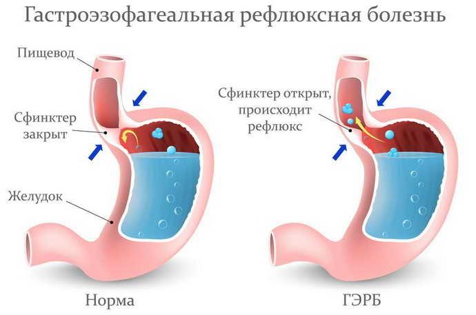 Гастроэзофагеальный рефлюкс как причина кислого запаха изо рта