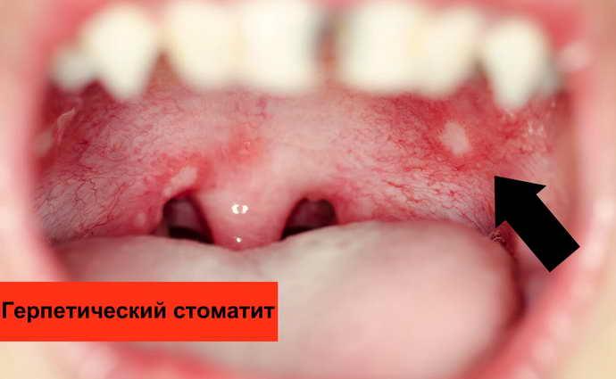 Герпетическая разновидность стоматита