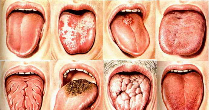 Глоссит как причина боли языка у ребенка