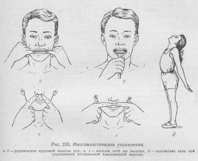 Исправление прикуса с помощью упражнений
