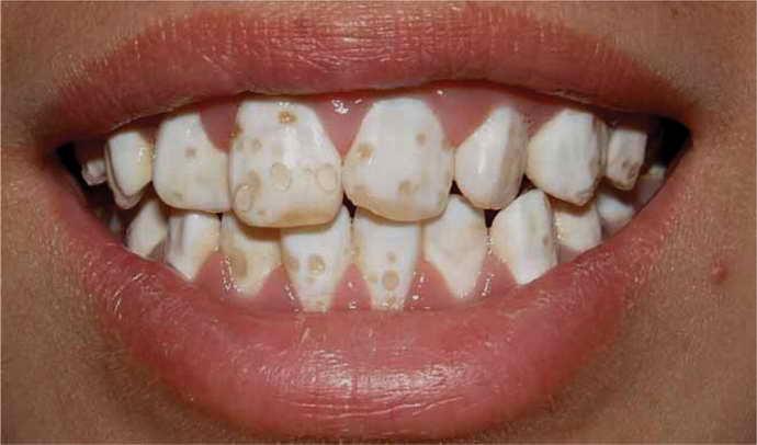 Изменения цвета эмали после удаления пульпы зуба