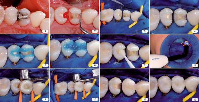 Как проходит пломбирование молочных зубов