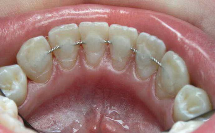Шинировние зубов