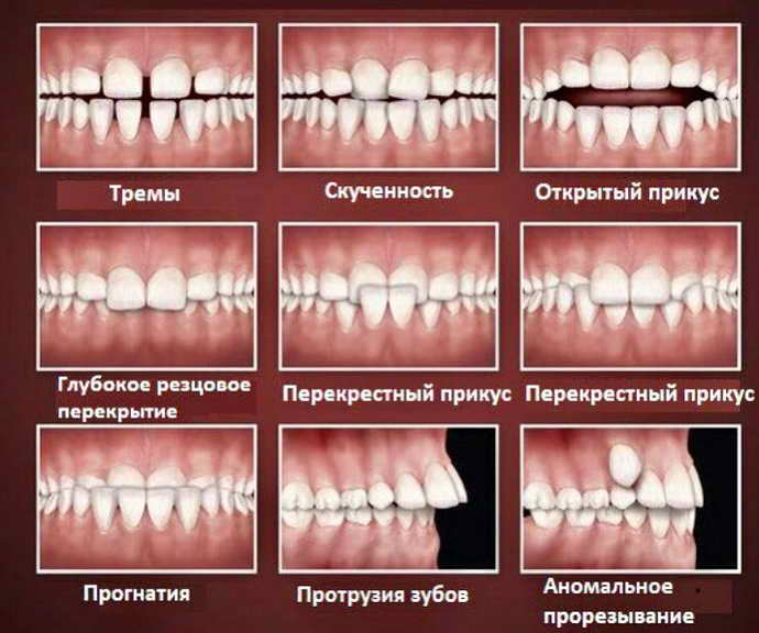 Кариес молочных зубов нужно ли пломбировать