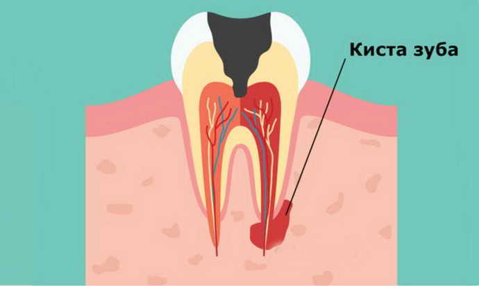 Киста зуба как выглядит