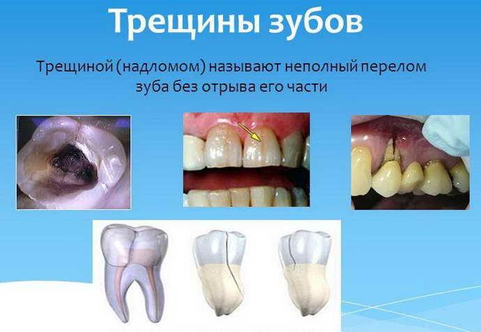 Клиническая картина трещин на зубах