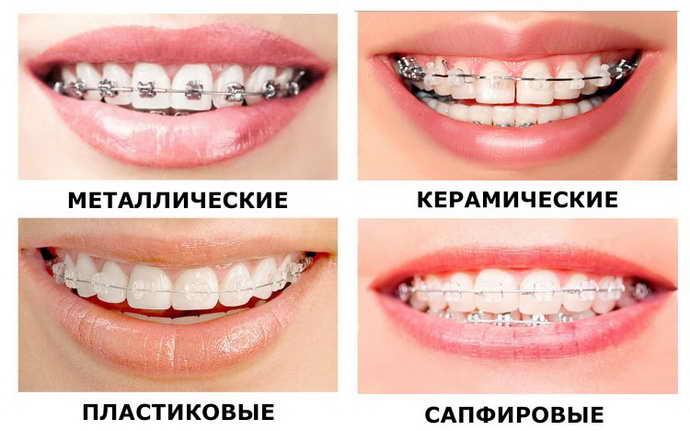 Сроки ортодонтической терапии немного зависят от материалов
