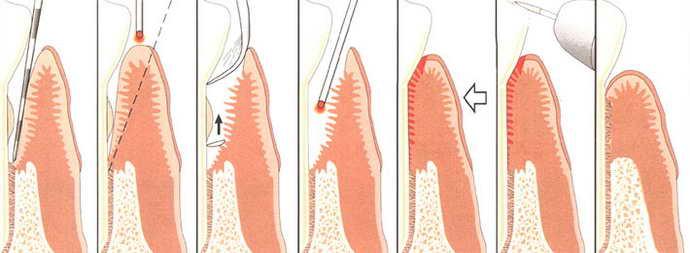 Лечение хронической формы периодонтита