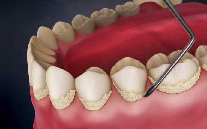 Механическая чистка зубов от зубного камня
