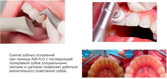 Механический способ отбеливания зубов