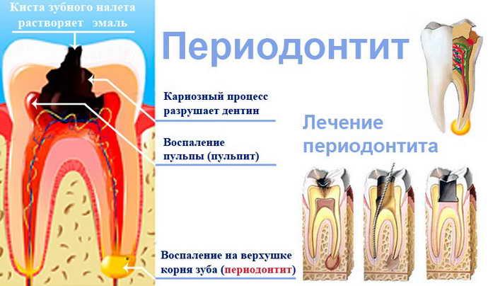 Механизм образования и лечение периодонтита
