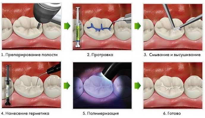 Методы лечения кариеса постоянных зубов