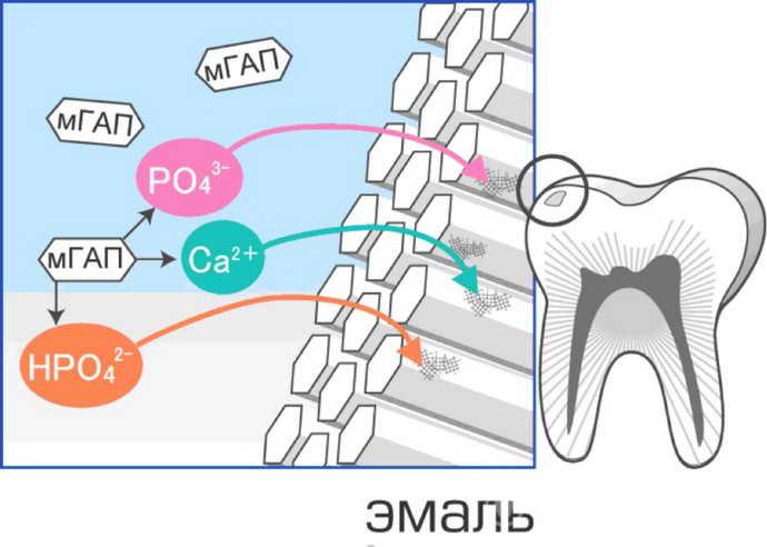 Неинвазивные методы лечения кариеса молочных зубов у детей