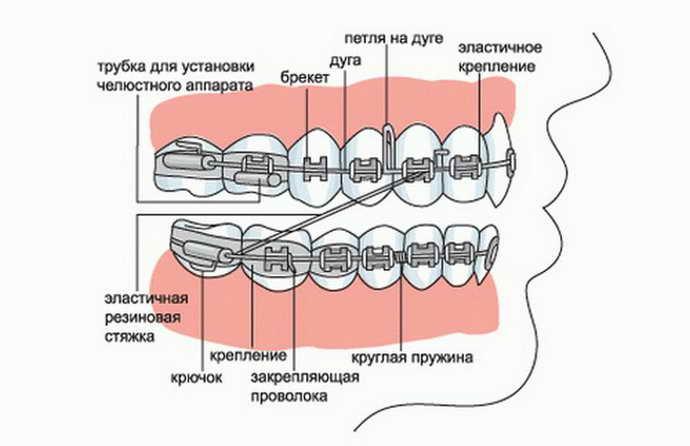 Общие сведения о резинках для брекетов