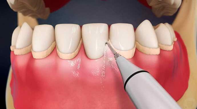 Очищение зубов ультразвуковым аппаратом от пародонтоза