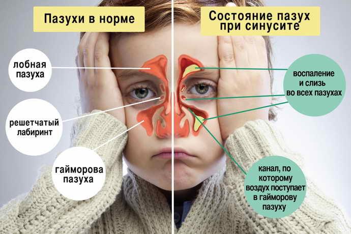 Одонтогенный гайморит у ребенка как причина свища на щеке