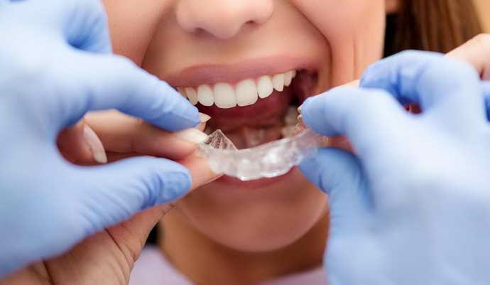 Ортодонтические капы- для исправления прикуса