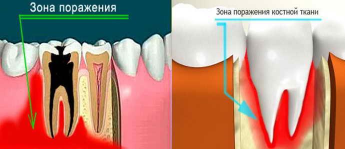 Остеомиелит челюстной кости как осложнение от флюса