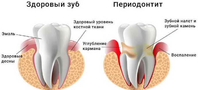 Периодонтит как причина кисты зуба