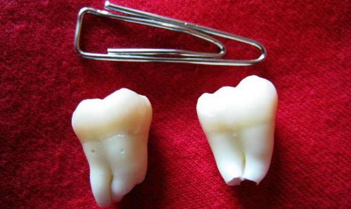 Показания к удалению молочного зуба