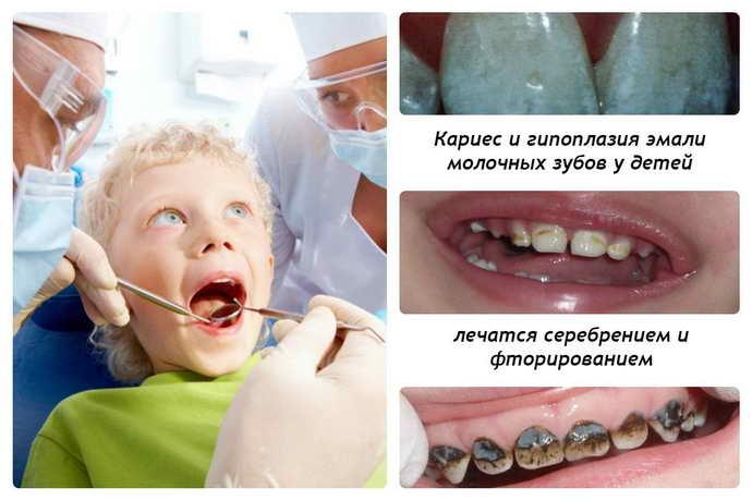 Посеребрение зубов у детей