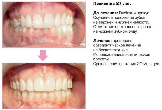 Причины обращения к ортодонту