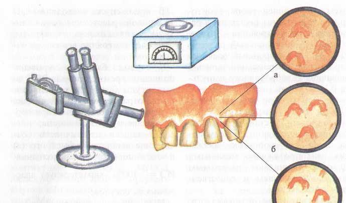 Основные методы диагностики гингивита