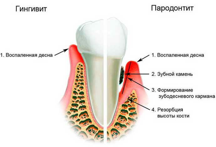 гингивит симптомы и лечение