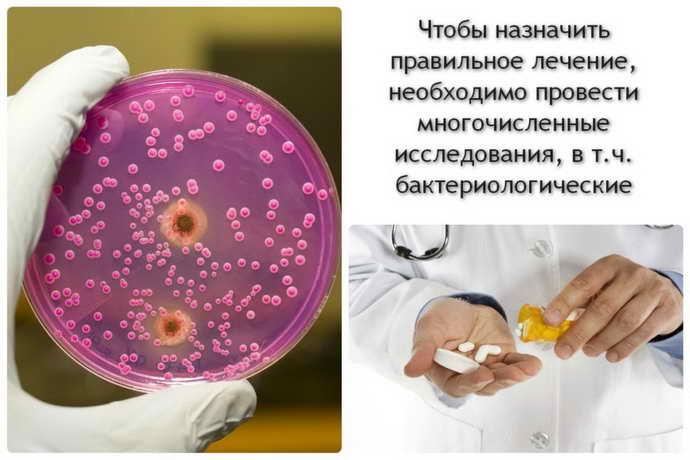 Клиническая картина стоматита