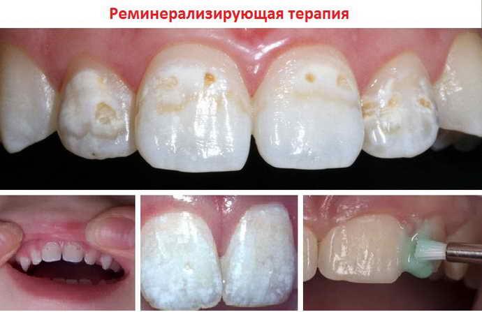 Процедура реминерализации зубов